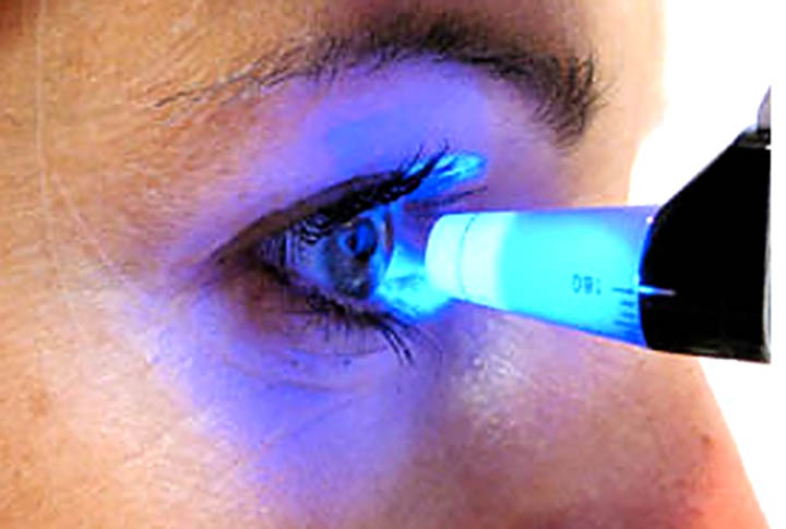 Isolamento causa problemas nos olhos. Consultar o medico, boa prevencao. Foto, exame de tonometria.