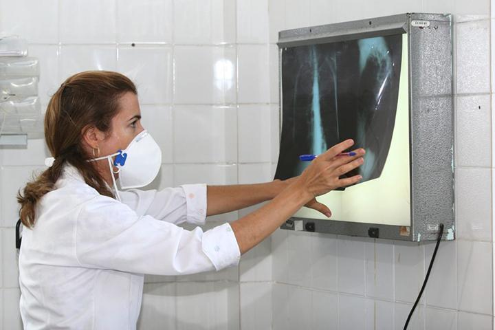 Exames preventivos, nova estrategia para acabar com a tuberculose que mata 1,5 milhão todo ano